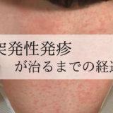 【写真多数】突発性発疹が治るまでの経過。高熱の後かつてない不機嫌に